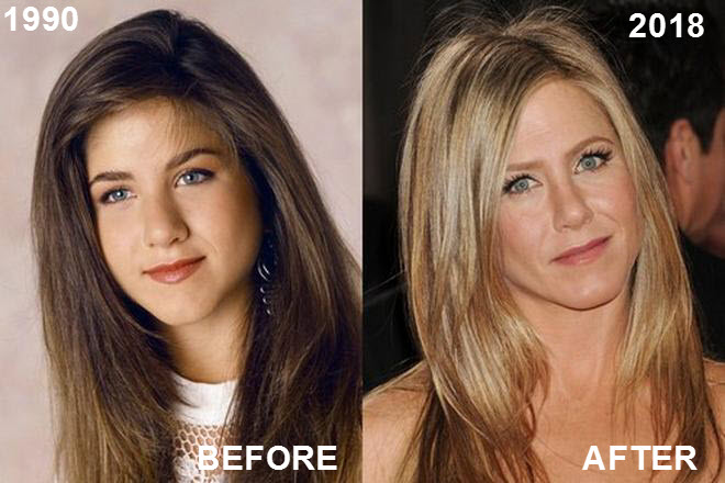 Jennifer Aniston's Face The Most Requested Celebrity Look In Cosmetic Clinics